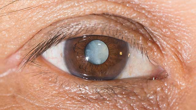 cataracts-cloudy-eye