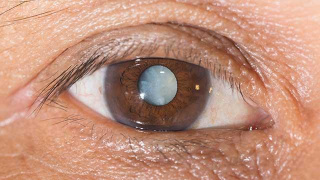 cataracts-cloudy-eye