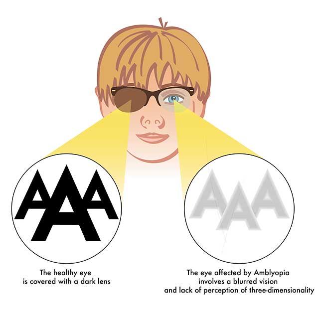 amblyopia-lazy-eye