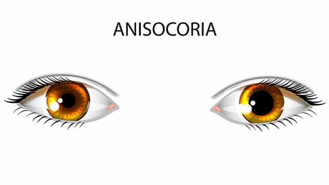 anisocoria