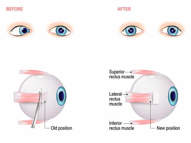 Esotropia surgery before and after